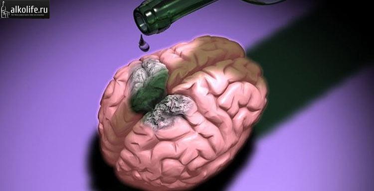 Гибель клеток головного мозга после застолья